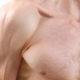 Aumento dimensione mammelle maschi